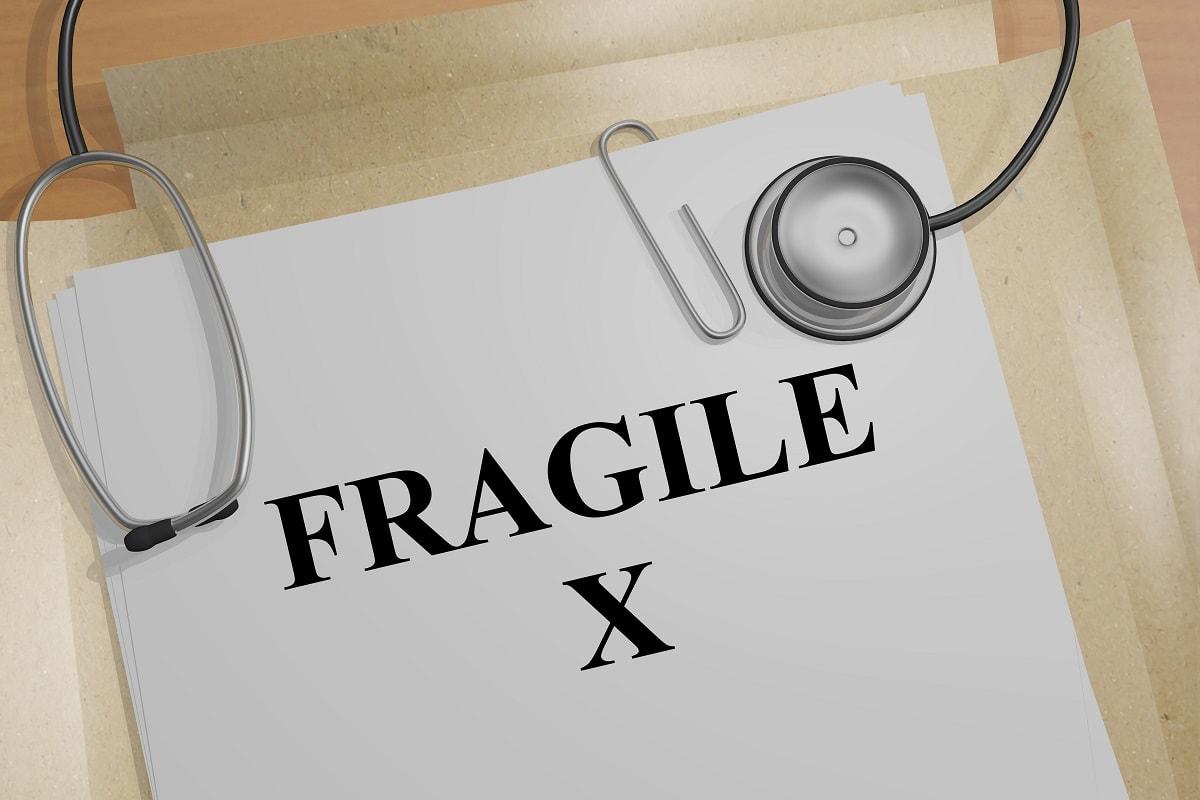 Cos'è la sindrome dell'X fragile?